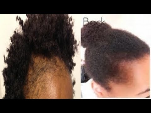 HOW TO TREAT BALD HAIR AND REGROW YOUR BALD HAIR SPOT NATURALLY