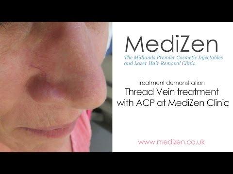 Treating Thread Veins with ACP at MediZen clinic, Birmingham UK