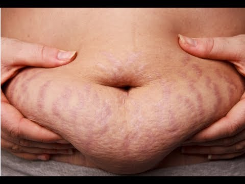 How to Get Rid of Stretch Marks Fast - Get Rid of Stretch Marks Naturally