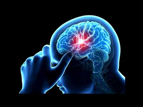 PREVENT STROKE SUBLIMINAL EXTREMELY POWERFUL AND VERY FAST RESULTS