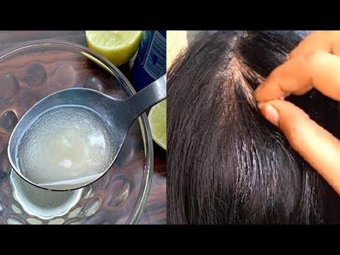 ஒரே வாரத்தில் சொட்டையில் முடி வளர | Fast Hair Growth tips in Tamil | Tamil Beauty Tips
