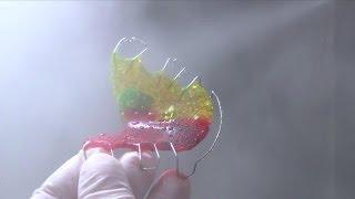 Wie wird eine lose Zahnspange hergestellt? | VAN DEN BRUCK
