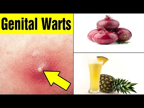 15 Home Remedies to Get Rid of Genital Warts|Remove Genital Warts