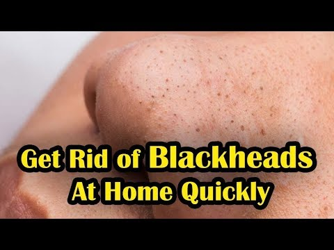 How to Get Rid of Blackheads At Home Quickly || Remove Blackheads Naturally