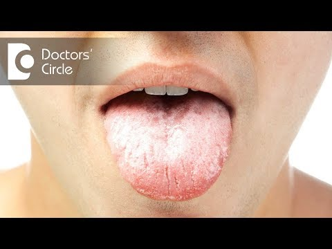 What does a white tongue in the morning mean? - Dr. Srivats Bharadwaj