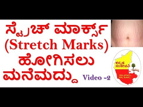 How to remove Stretch Marks in Kannada | Stretch Marks removal | Kannada Sanjeevani
