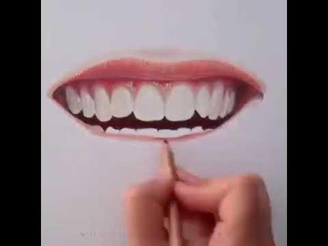 The Perfect Smile - Dr. Sarabjeet Singh   Chandigarh Orthodontics