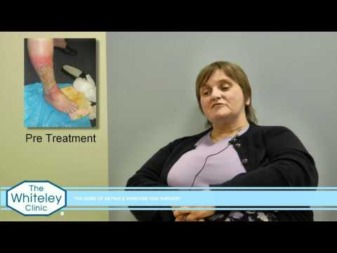 Leg Ulcer healed at The Whiteley Clinic