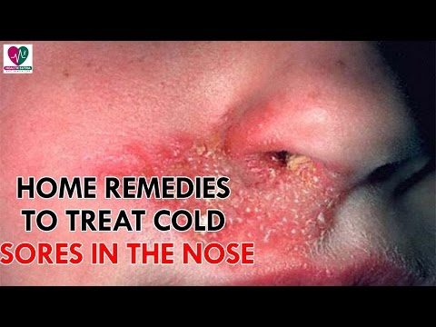 Home Remedies To Treat Cold Sores In The Nose - Health Sutra