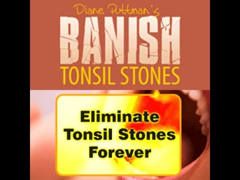 What Cause Tonsil Stones? Causes Of Tonsilloliths