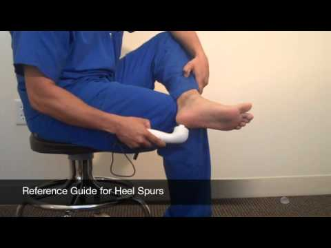 How to Treat Heel Spurs