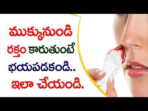 మీ ముక్కు నుండి రక్తం కారుతుందా..? భయపడకండి..ఇలాచేయండి | How to Stop Nose  in Telugu