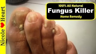 Home Remedy for Toenail Fungus & Athlete's Foot | Natural Fungus Killer by Nicoles Heart