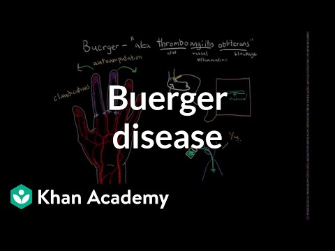 Buerger disease | Circulatory System and Disease | NCLEX-RN | Khan Academy