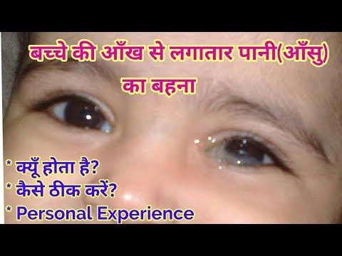 नवजात शिशु की आँख से पानी या आँसू आना। Watery Eyes in babies   Blocked Tear Duct in Babies