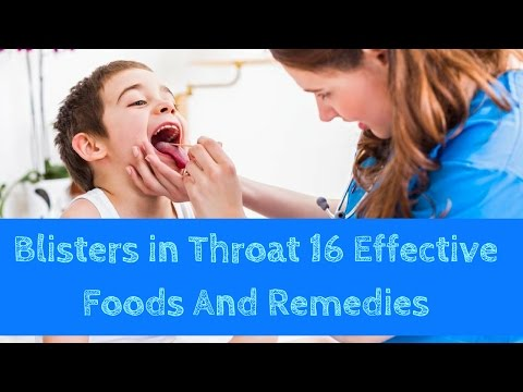 Blisters in Throat 16 Effective Foods and Remedies