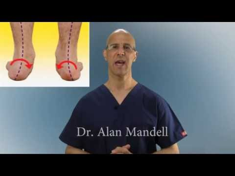Pronation of Feet (Fallen Arches) Causes PInched Nerves, Neck & Back Pain - Dr Mandell