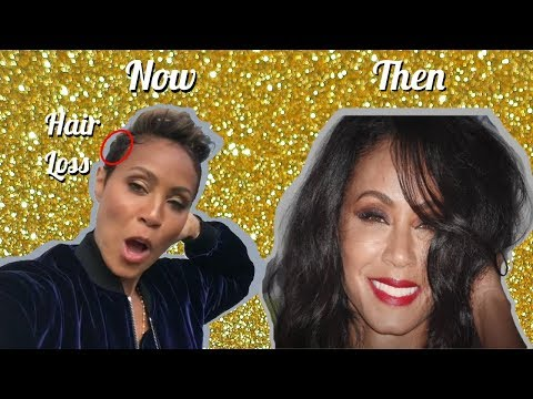 Jada Pinkett Smith Reacts to Attention on Hair Loss Reveal on Red Table Talk!