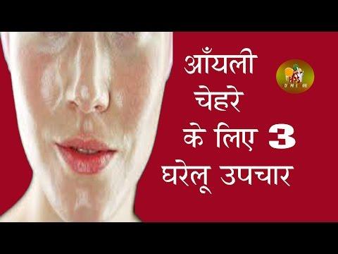 ऑयली चेहरे के लिए 3 घरेलू उपचार / 3 Home Remedies For oily skin