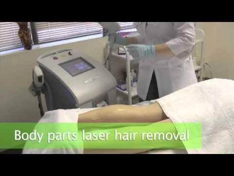 Laser Hair Removal at VersusLaser.com