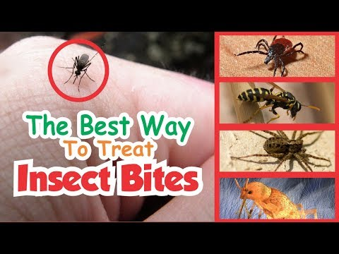 The Best Way To Treat Insect Bites | Mosquito, Flea, Tick, Bed Bugs, Spider, Leech, Bee