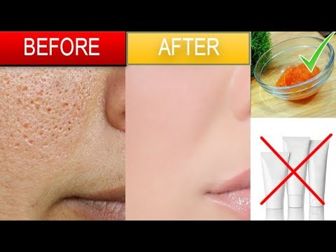 LARGE OPEN PORES - Get Rid PERMANENTLY with Simple Remedy Urdu Hindi