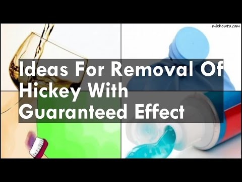 Ideas For Removal Of Hickey With Guaranteed Effect