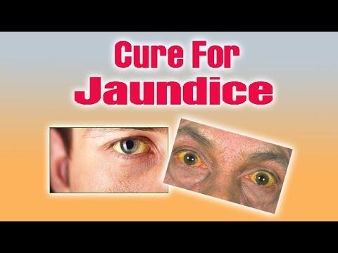 Jaundice - जानिए आयुर्वेद में पीलिया का सफल इलाज।
