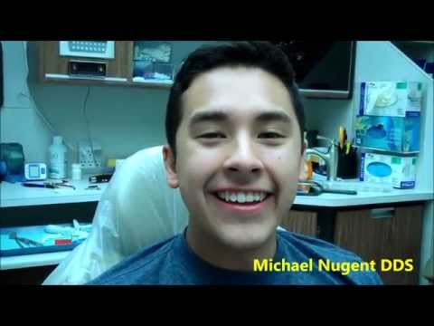 Chipped Tooth | Dr. Michael Nugent | NO PAIN