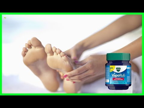 Does Applying Vicks Vaporub On Your Feet Can Stop Coughing? Experts Explain | Best Home Remedies