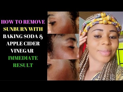 How To Remove Sunburn With Baking Soda & Apple Cider Vinegar