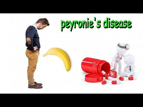 Peyronie's Disease : Causes, Symptoms and Treatment Options (xiaflex)