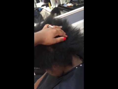 Hair loss from stress