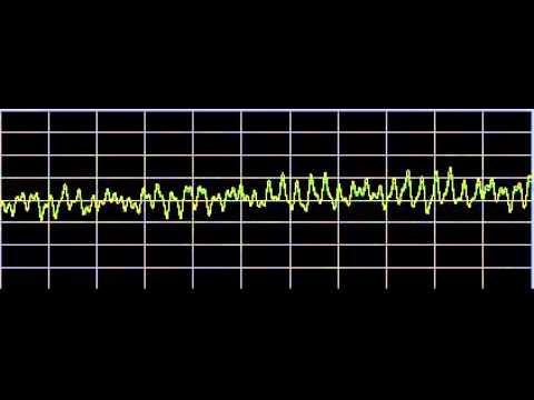 Shingles - Rife Frequencies