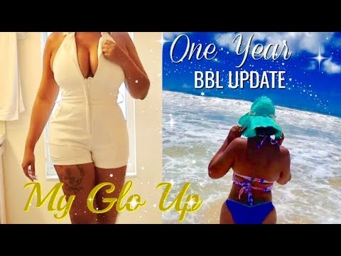 One Year BBL Post OP Update: My