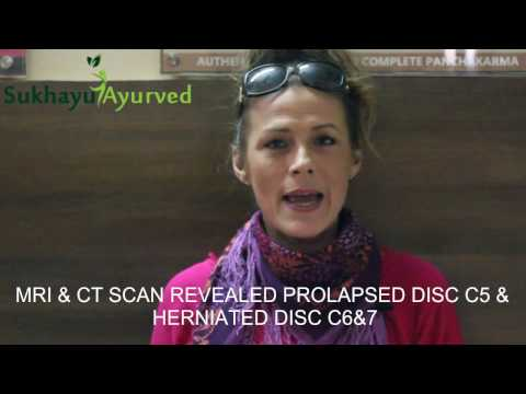 Cervical C5-C6 Slip disc Cure without Surgery