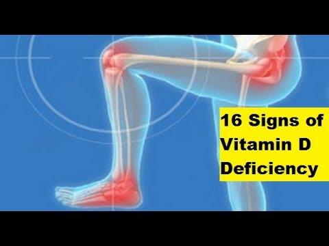 16 Signs of Vitamin D Deficiency | Signs of Vitamin D Deficiency
