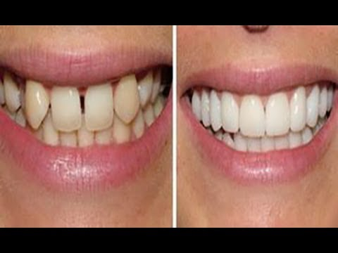 How to Straighten Teeth Without Braces - Get straight teeth FREE, FAST at home