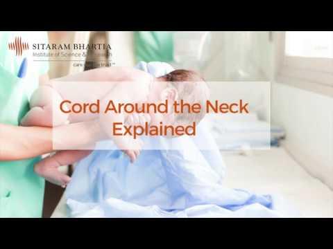 Cord Around Neck Explained