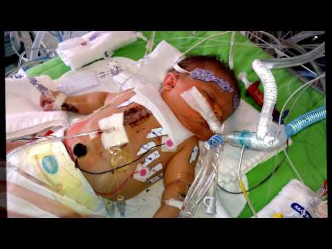 Evan's Journey with Tetralogy of Fallot (TOF)