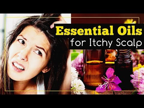 Essential Oils for Itchy Scalp Relief