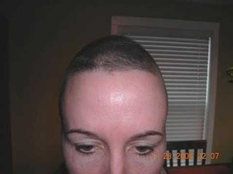 Hair Growth Show Starting 6 Weeks After Chemo