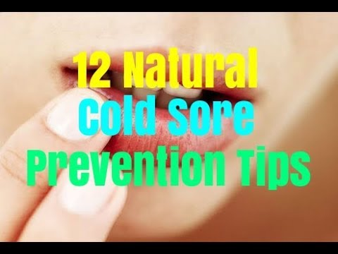 12 Natural Cold Sore Prevention Tips