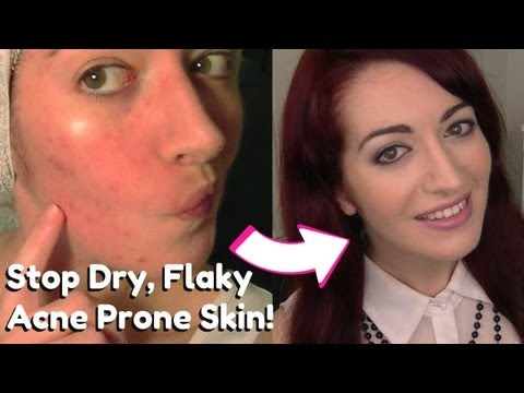 • HOW TO: Stop & Remove Dry Flaky Skin | Dry & Acne Prone Skin Care | Skin Tip Tuesday! •