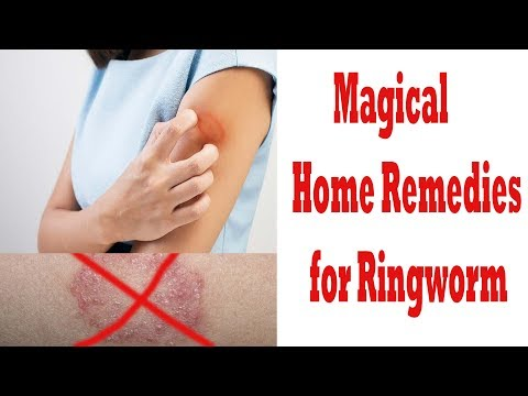 how to cure ringworm permanently || how to get rid of ringworm fast | Magical Remedies for Ringworm