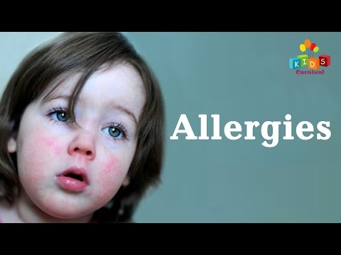 Best Cure For Kids Allergies with Natural Home Remedy || Kids Carnival