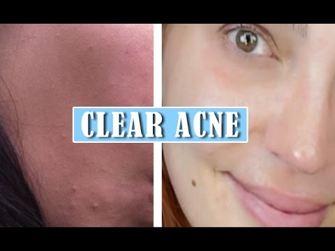 ACNE Clearing | AM & PM Routines