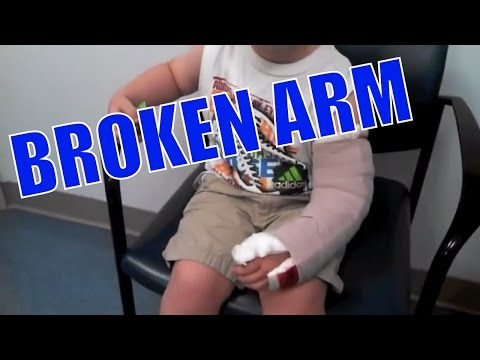 BROKEN ARM UPDATE FROM THE HOSPITAL! GETTING A CAST OFF!