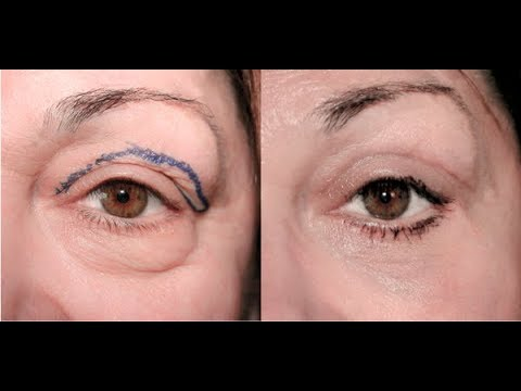 THIS RECIPE WILL HELP YOU GET RID OF DARK EYE CIRCLES IN ONLY 10 MINUTES