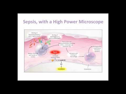 What Sepsis Is [UndergroundMed]